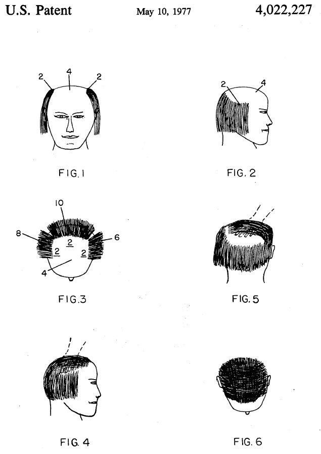 Forget about finasteride: proper hair styling is the real cure as instructed in the sequence of Fig.1-6